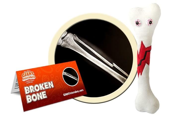Broken Bone plush doll