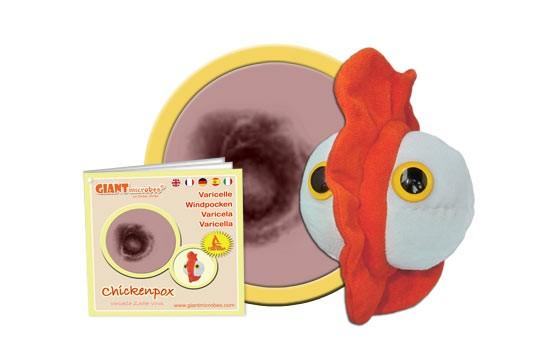 Chickenpox (Varicella-Zoster virus)