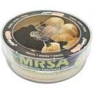 MRSA (Multiple-Resistant staphylococcus aureus) Petri Dish