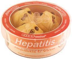 Hepatitis (Hepatitis C Virus) Petri Dish