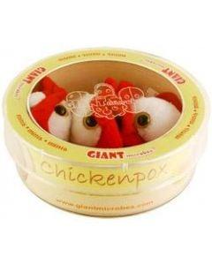 Chickenpox (Varicella-Zoster virus) Petri Dish