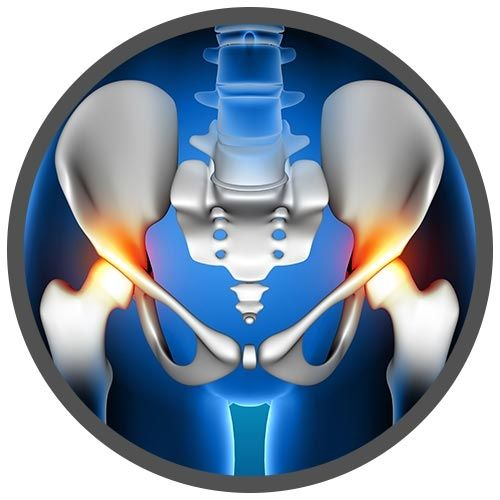Hip Replacement real image