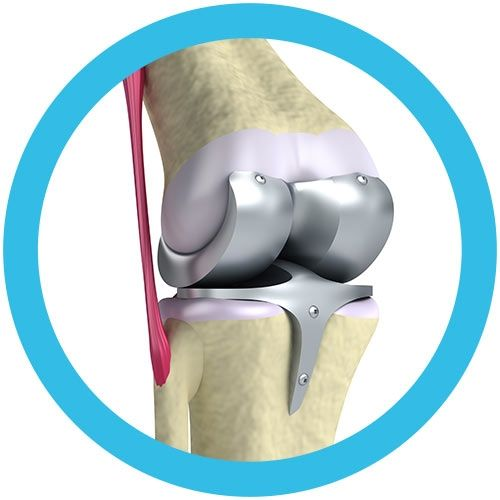 Knee Replacement real image