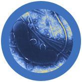 Cholera (Vibrio cholerae) under a microscope!