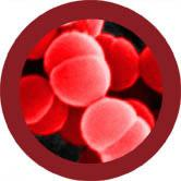 Flesh Eating (Streptococcus pyogenes) Gigantic doll under a microscope!
