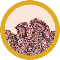 Celiac Disease under a microscope!
