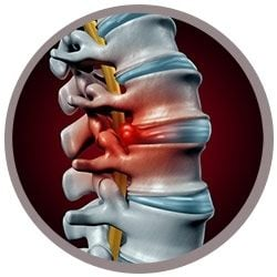 Back Pain real image