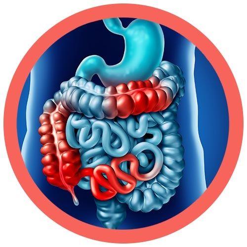 Crohns Colitis real image