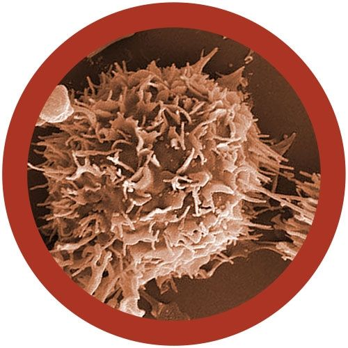 Kidney Cancer microbial