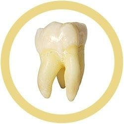 Tooth molar real image