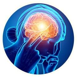 Migraine Headache under a microscope!