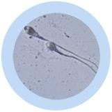 Sperm Cell Key Chain 12 Pack under a microscope!