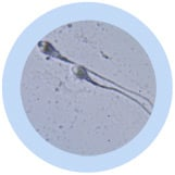 """Sperm Cell Gigantic 32"""" under a microscope!"""